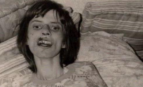 The Horrific Emaciation of Anneliese Michel, who died weighing just 68 pounds.